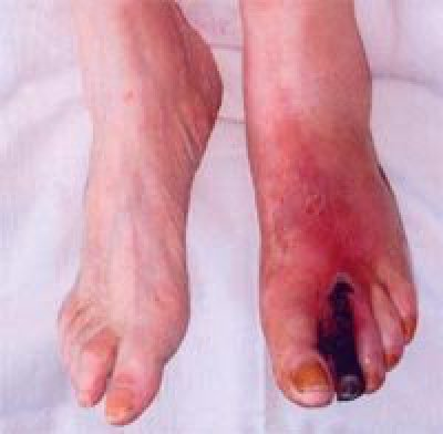 У меня появились вены в виде звездочки на ногах что можна сделать